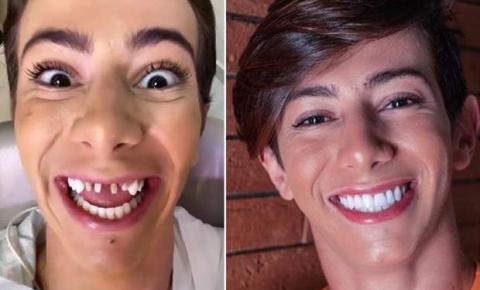 Especialista explica imagens chocantes de desgaste dentário de famosos após uso de lentes e tira dúvidas sobre procedimento
