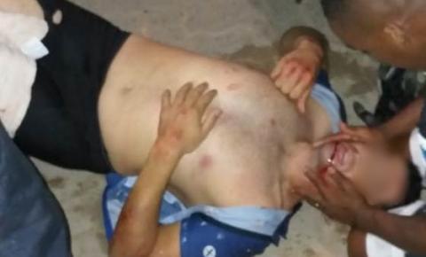 Acidente em Graúna, Itapemirim, deixa ciclista ferido; Bicicleta ficou totalmente destruída